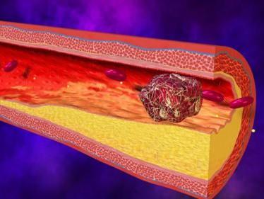 Симптоматика и лечение артериального тромбоза нижних конечностей