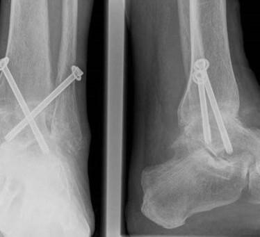 Что за операция артродез голеностопного сустава?