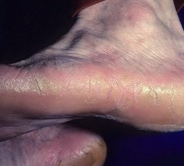 Симптомы и лечение ладонно-подошвенной кератодермии