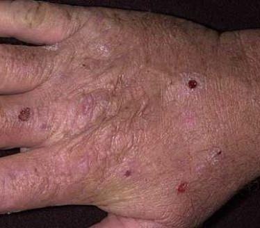 Проявления и терапия кожной порфирии