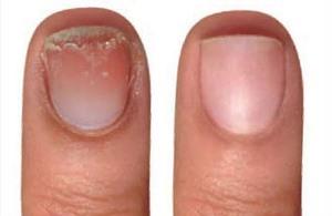 Причины и лечение расслаивания ногтей