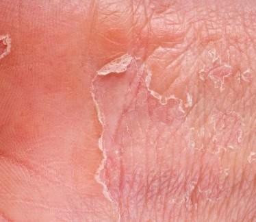 Проявления и терапия сухой экземы на ногах