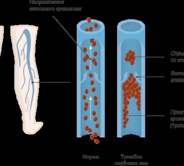 Симптомы и терапия тромбоза глубоких вен ног