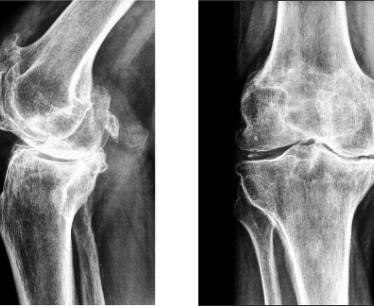 Симптомы и лечение деформирующего артроза колена