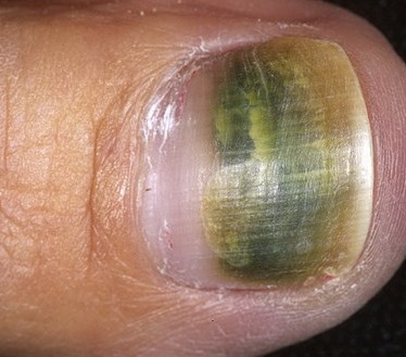 Виды и лечение онихии ногтей