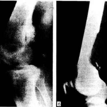 Классификация, диагностика и терапия паростальной саркомы