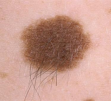 Проявления и классификация пигментного невуса кожи