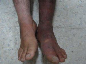 Проявления, диагностика и лечение синдрома Клиппеля-Треноне