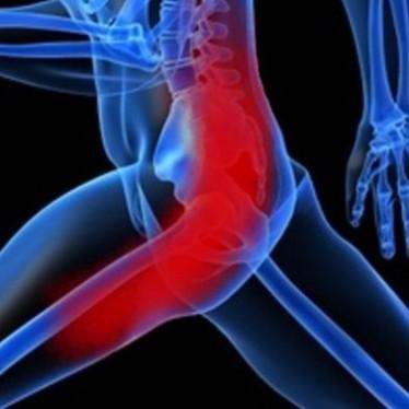 Проявления и терапия тендиноза большого вертела бедренной кости