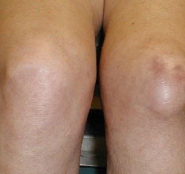 Причины развития, проявления и терапия инфрапателлярного бурсита коленного сустава