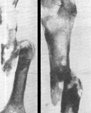 Проявления и терапия миеломы костей позвоночника