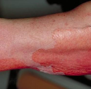 Токсический эпидермальный некролиз — проявления и лечение
