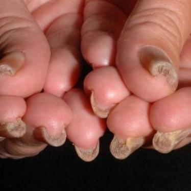 Проявления и лечение пахионихии ногтя