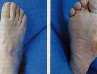 Проявления и лечение диабетической остеоартропатии (стопы Шарко)