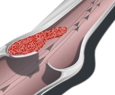 Симптомы и лечение венозного застоя в ногах
