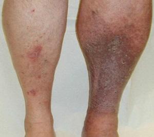 Причины развития, виды и лечение цианоза кожи