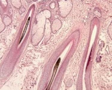 Симптомы и лечение фолликулярной кератомы