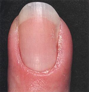 Воспаление кутикулы ногтя у ребенка