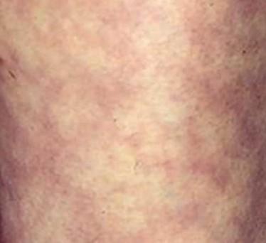 Причины развития и терапия при мраморности кожи у ребенка 3-4 лет