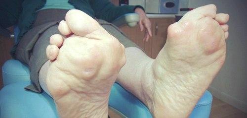 Ревматоидный артрит стопы - симптомы и лечение