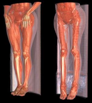 Формы, проявления и лечение дистрофии мышечной ткани