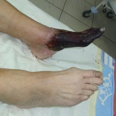 Причины развития и лечение сухой гангрены стопы