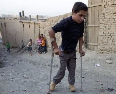 Что за болезнь полиомиелит?