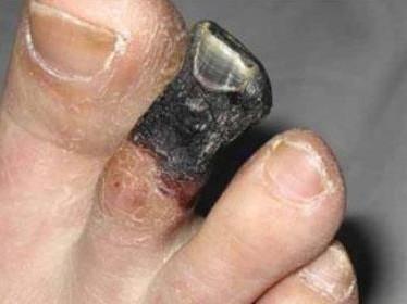Симптомы и лечение сухой гангрены пальца ноги